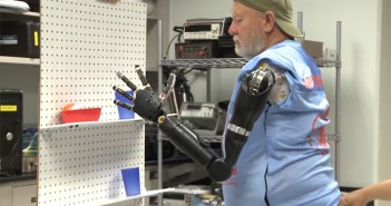 amputee prosthetic limb
